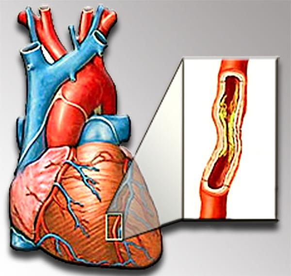 аббревиатура холестерина в анализе крови