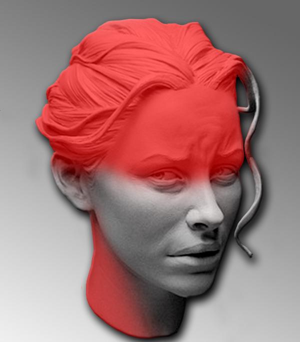 болит шея мигрень Болит шея при повороте головы: причины и лечение